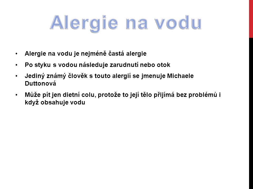 Alergie na vodu je nejméně častá alergie Po styku s vodou následuje zarudnutí nebo otok Jediný známý člověk s touto alergií se jmenuje Michaele Duttonová Může pít jen dietní colu, protože to její tělo přijímá bez problémů i když obsahuje vodu