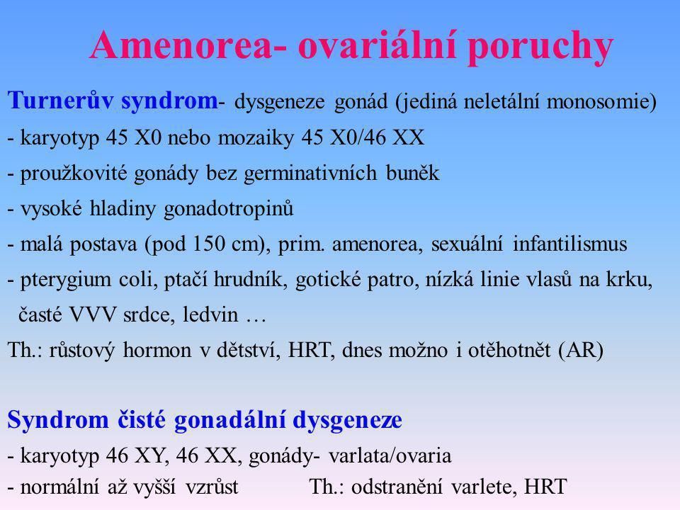 Amenorea- ovariální poruchy Turnerův syndrom - dysgeneze gonád (jediná neletální monosomie) - karyotyp 45 X0 nebo mozaiky 45 X0/46 XX - proužkovité go