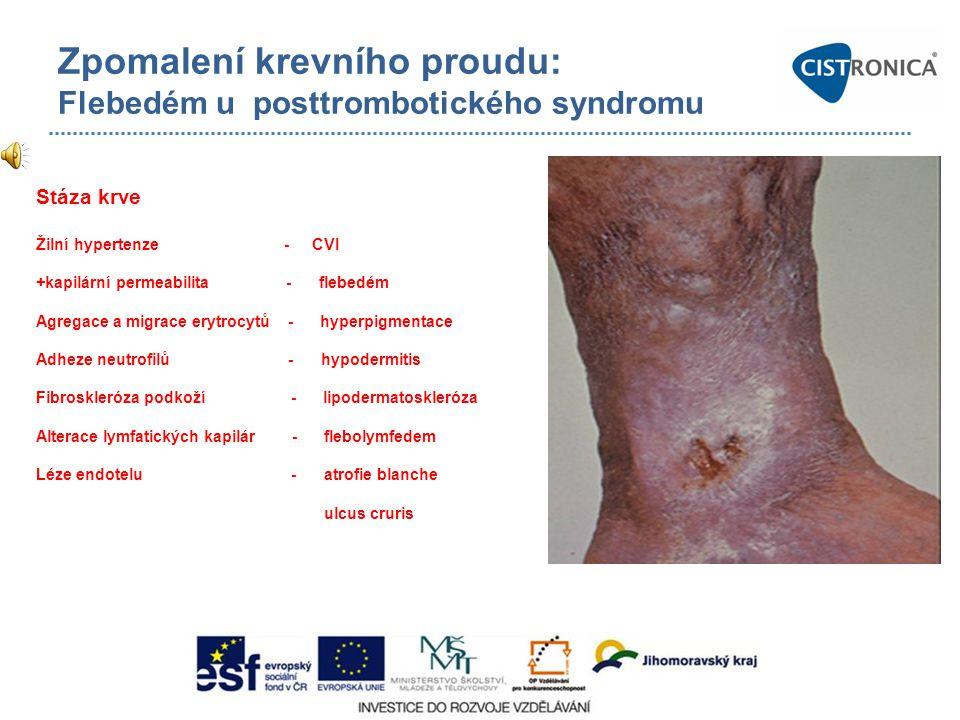 Zpomalení krevního proudu: Flebedém u posttrombotického syndromu Stáza krve Žilní hypertenze - CVI +kapilární permeabilita - flebedém Agregace a migra