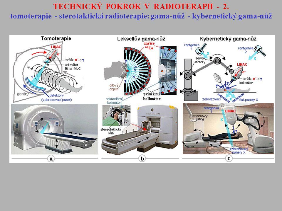 TECHNICKÝ POKROK V RADIOTERAPII - 2. tomoterapie - sterotaktická radioterapie: gama-nůž - kybernetický gama-nůž