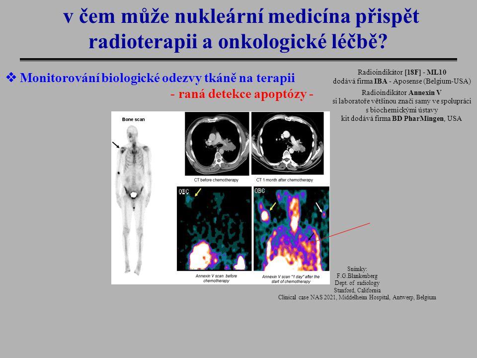 v čem může nukleární medicína přispět radioterapii a onkologické léčbě?  Monitorování biologické odezvy tkáně na terapii - raná detekce apoptózy - Sn