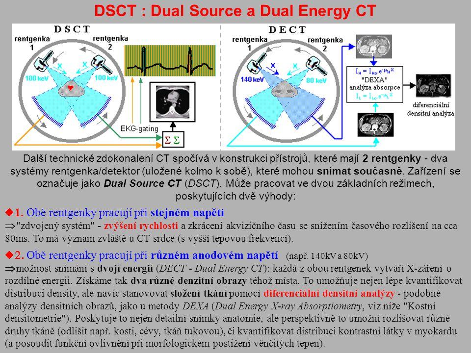 DSCT : Dual Source a Dual Energy CT Další technické zdokonalení CT spočívá v konstrukci přístrojů, které mají 2 rentgenky - dva systémy rentgenka/dete