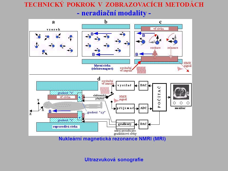 TECHNICKÝ POKROK V ZOBRAZOVACÍCH METODÁCH - neradiační modality - Nukleární magnetická rezonance NMRI (MRI) Ultrazvuková sonografie