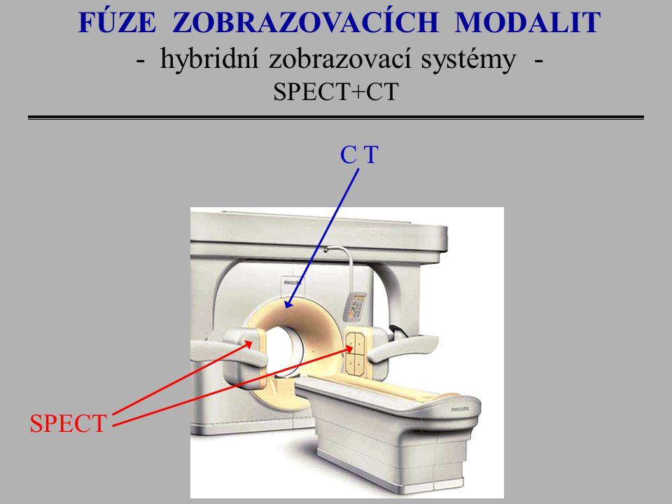 FÚZE ZOBRAZOVACÍCH MODALIT - hybridní zobrazovací systémy - SPECT+CT C T SPECT