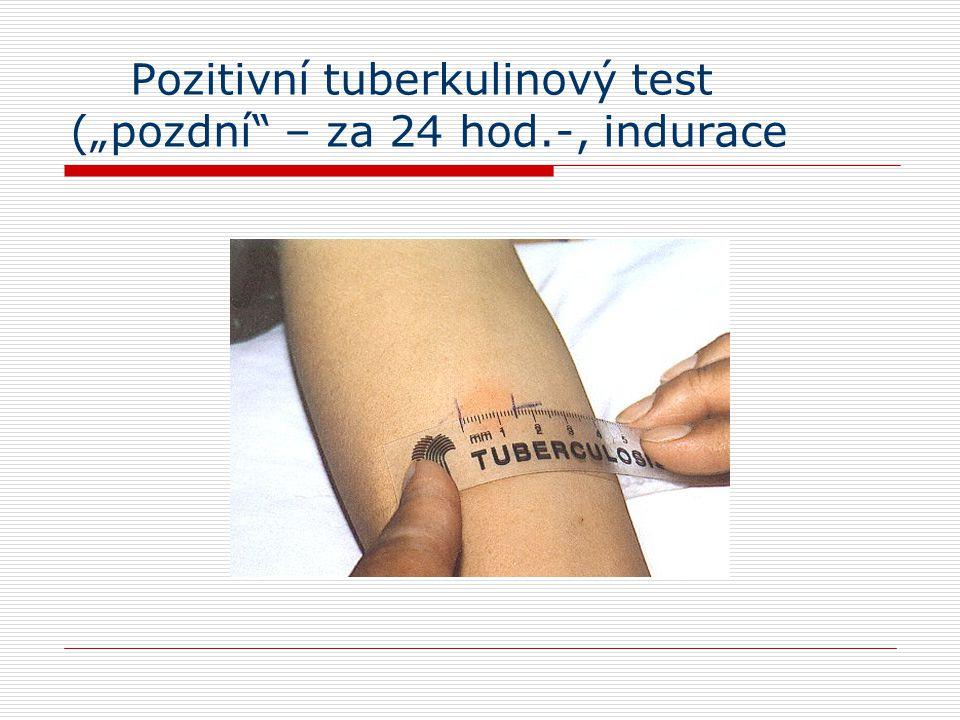 """Pozitivní tuberkulinový test (""""pozdní – za 24 hod.-, indurace"""