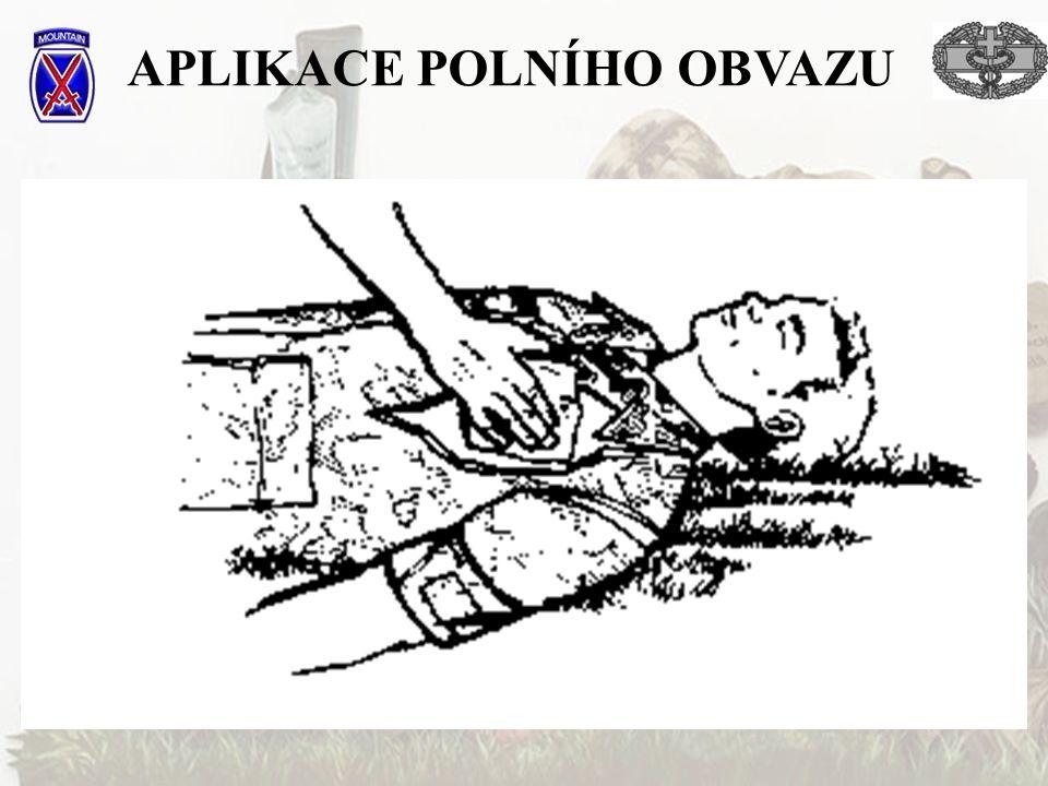APLIKACE POLNÍHO OBVAZU