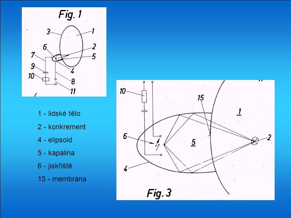 1 - lidské tělo 2 - konkrement 4 - elipsoid 5 - kapalina 6 - jiskřiště 15 - membrána
