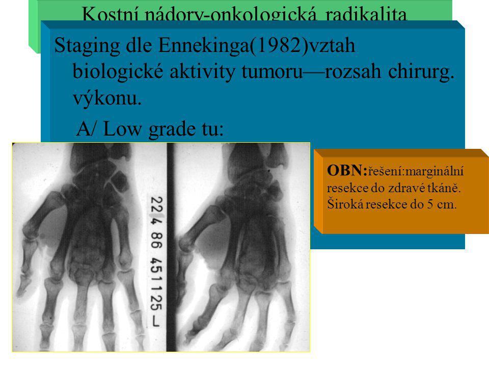 Kostní nádory-onkologická radikalita Staging dle Ennekinga(1982)vztah biologické aktivity tumoru—rozsah chirurg. výkonu. A/ Low grade tu: OBN: řešení: