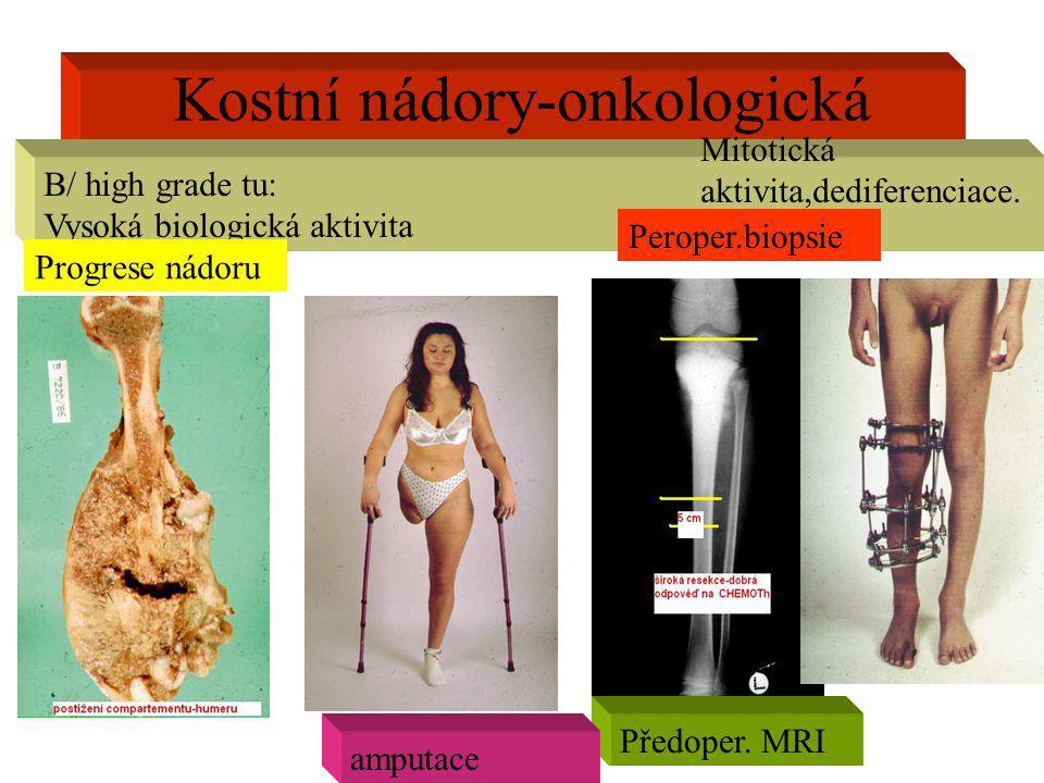 Kostní nádory-onkologická radikalita B/ high grade tu: Vysoká biologická aktivita Předoper. MRI Progrese nádoru amputace Peroper.biopsie Mitotická akt