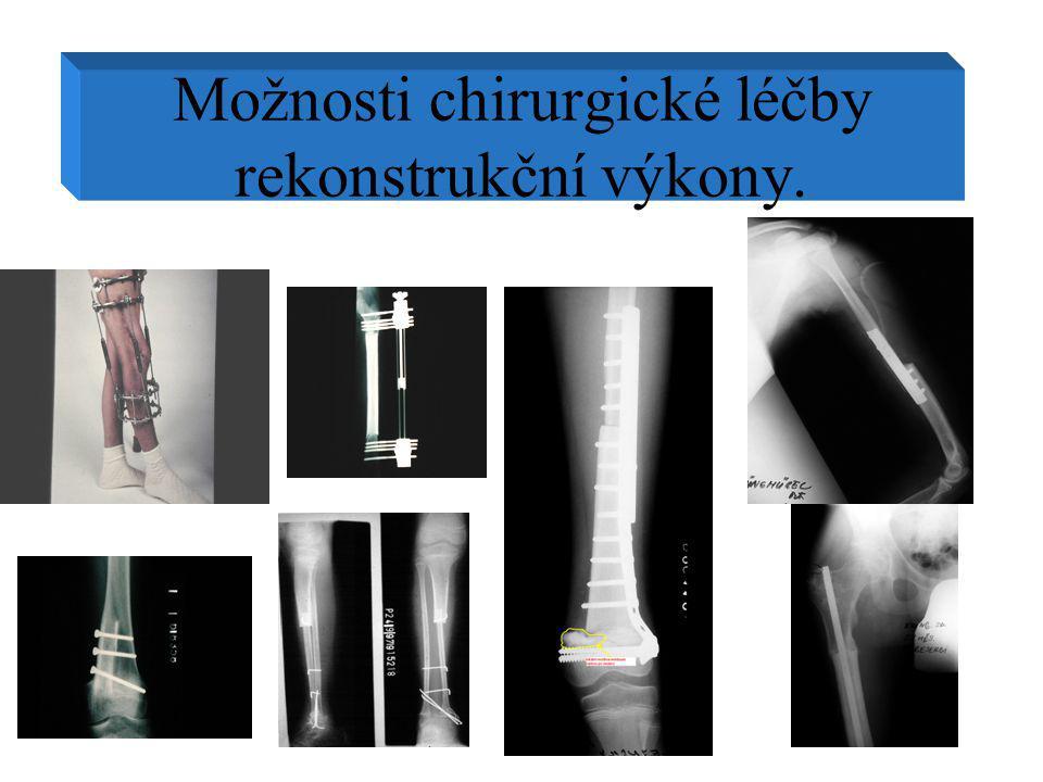 Možnosti chirurgické léčby rekonstrukční výkony.