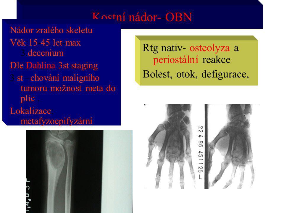 Kostní nádor--OBN Nádor zralého skeletu Věk:15-45 let-max 3.decenium Dle Dahlina 3st.staging 3 st –chování maligního tumoru-možnost meta do plic. Loka