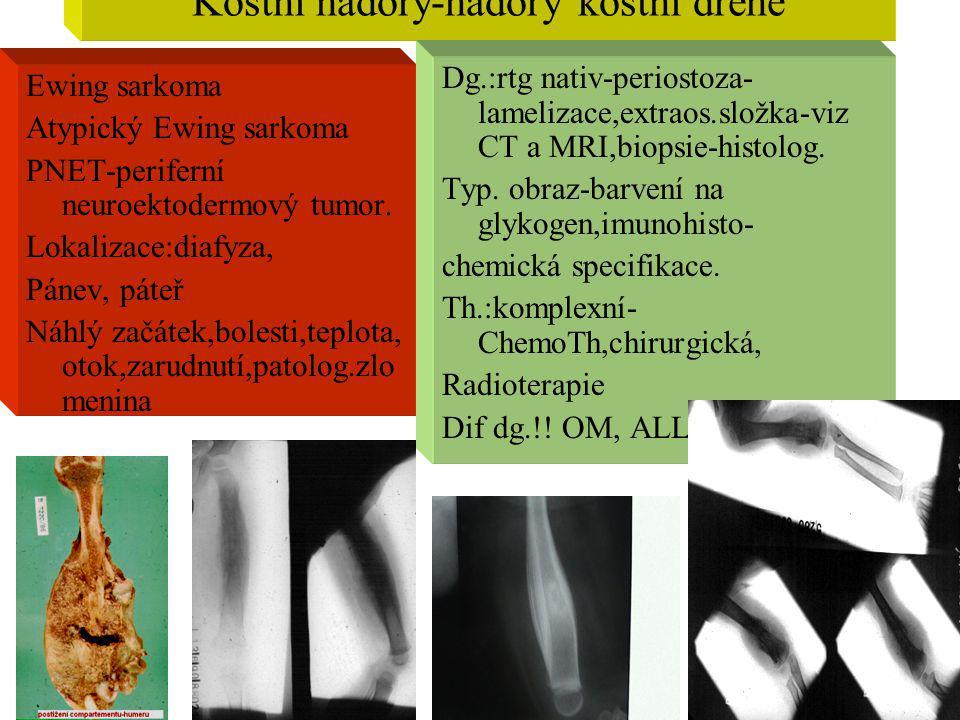 Kostní nádory-nádory kostní dřeně Ewing sarkoma Atypický Ewing sarkoma PNET-periferní neuroektodermový tumor. Lokalizace:diafyza, Pánev, páteř Náhlý z