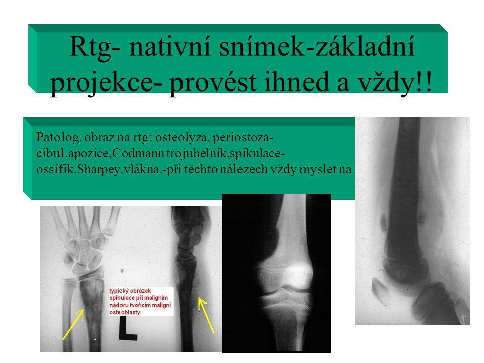 Rtg- nativní snímek-základní projekce- provést ihned a vždy!! Patolog. obraz na rtg: osteolyza, periostoza- cibul.apozice,Codmann trojuhelník,spikulac