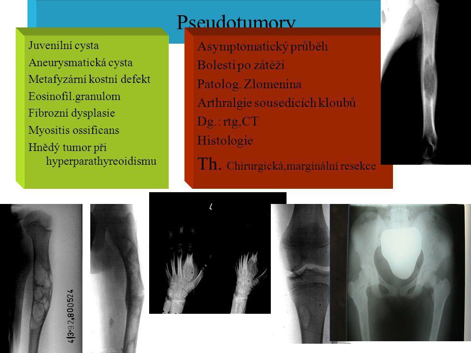 Pseudotumory Juvenilní cysta Aneurysmatická cysta Metafyzární kostní defekt Eosinofil.granulom Fibrozní dysplasie Myositis ossificans Hnědý tumor při