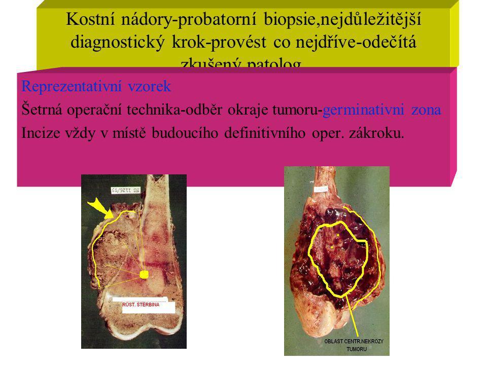 Kostní nádory-probatorní biopsie,nejdůležitější diagnostický krok-provést co nejdříve-odečítá zkušený patolog. Reprezentativní vzorek Šetrná operační