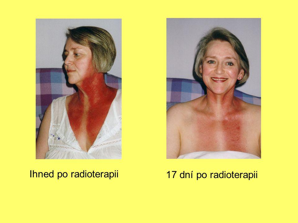 Ihned po radioterapii 17 dní po radioterapii
