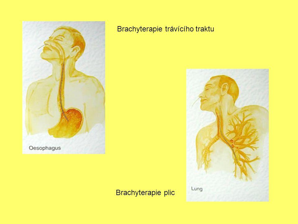 Brachyterapie trávícího traktu Brachyterapie plic