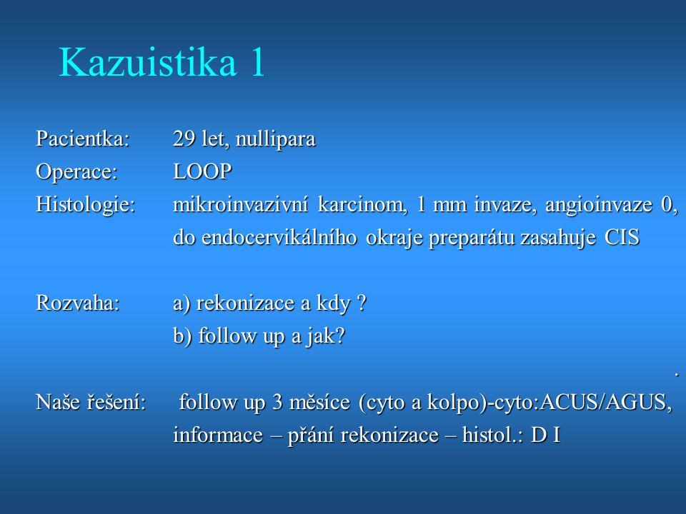 Kazuistika 1 Pacientka:29 let, nullipara Operace:LOOP Histologie:mikroinvazivní karcinom, 1 mm invaze, angioinvaze 0, do endocervikálního okraje prepa