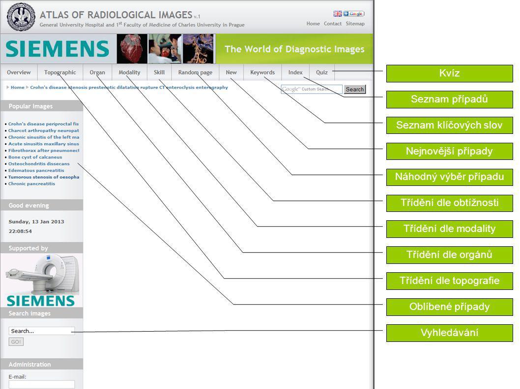 Kvíz Seznam případů Seznam klíčových slov Nejnovější případy Náhodný výběr případu Třídění dle obtížnosti Třídění dle modality Třídění dle orgánů Tříd