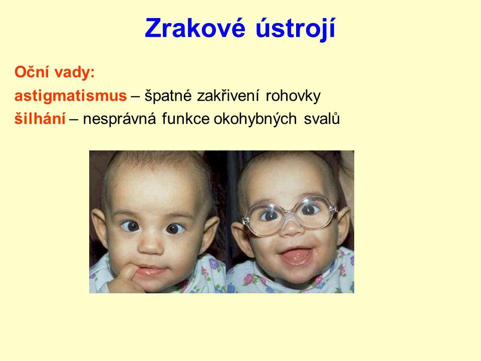 Zrakové ústrojí Oční vady: astigmatismus – špatné zakřivení rohovky šilhání – nesprávná funkce okohybných svalů