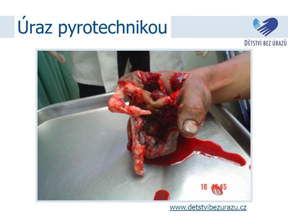 Úraz elektrickým proudem www.detstvibezurazu.cz, 2008www.detstvibezurazu.cz