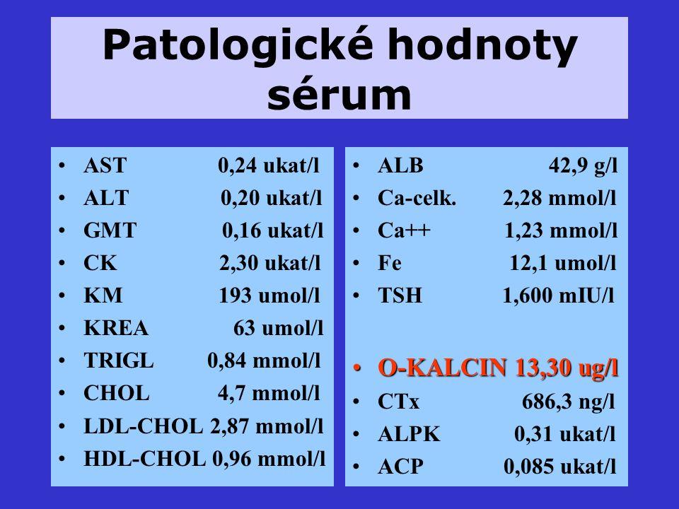 Patologické hodnoty sérum AST 0,24 ukat/l ALT 0,20 ukat/l GMT 0,16 ukat/l CK 2,30 ukat/l KM 193 umol/l KREA 63 umol/l TRIGL 0,84 mmol/l CHOL 4,7 mmol/l LDL-CHOL 2,87 mmol/l HDL-CHOL 0,96 mmol/l ALB 42,9 g/l Ca-celk.