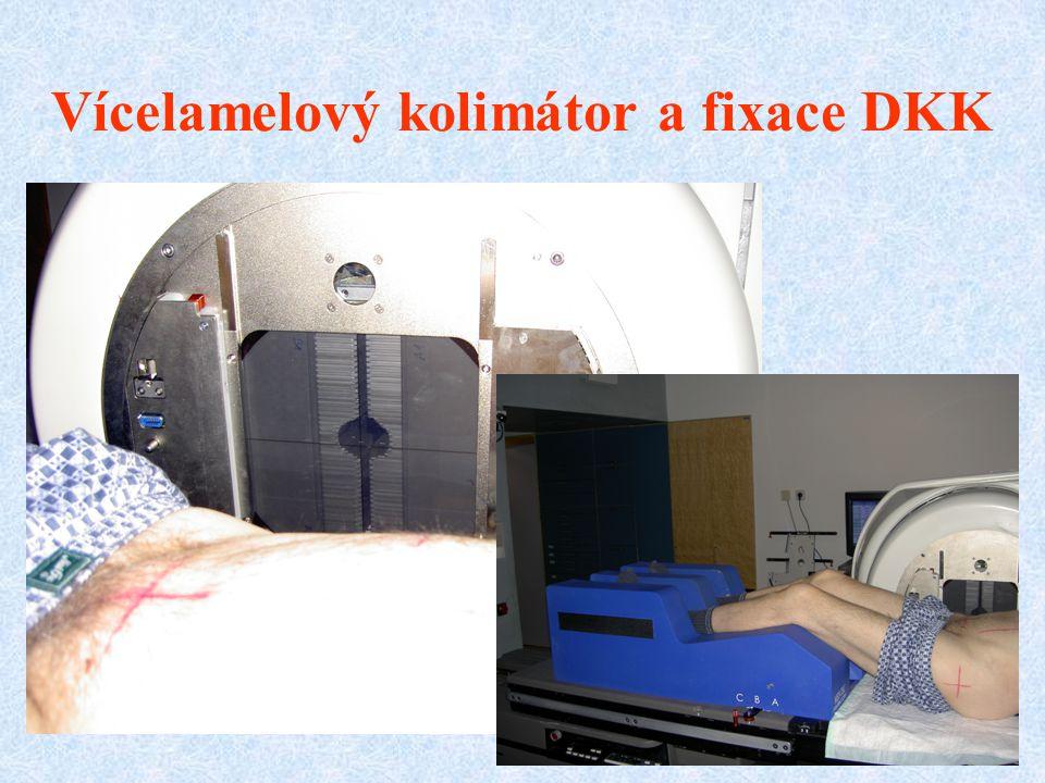 Vícelamelový kolimátor a fixace DKK