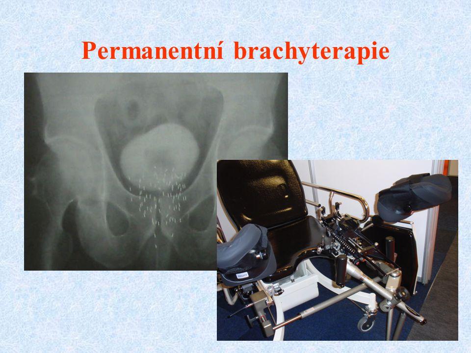 Permanentní brachyterapie