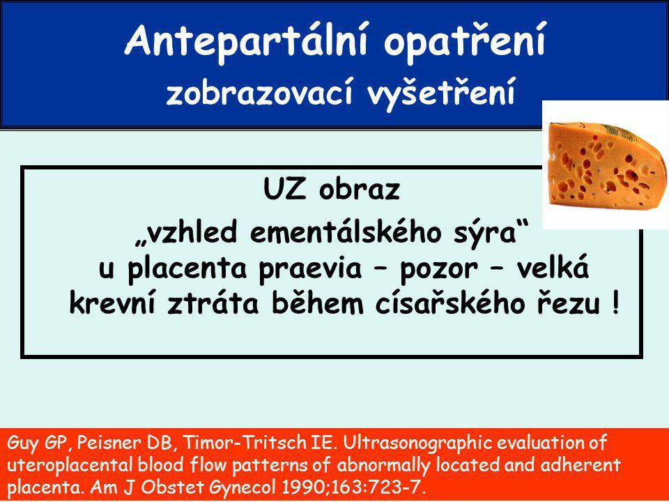 """PPH – Petr Křepelka - 2007 UZ obraz """"vzhled ementálského sýra u placenta praevia – pozor – velká krevní ztráta během císařského řezu ."""