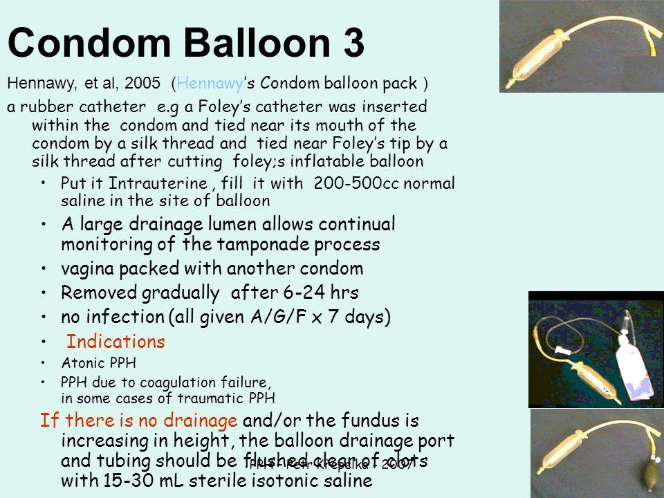 PPH – Petr Křepelka - 2007 Condom Balloon 3 Hennawy, et al, 2005 ( Hennawy's Condom balloon pack ) a rubber catheter e.g a Foley's catheter was inserted within the condom and tied near its mouth of the condom by a silk thread and tied near Foley's tip by a silk thread after cutting foley;s inflatable balloon Put it Intrauterine, fill it with 200-500cc normal saline in the site of balloon A large drainage lumen allows continual monitoring of the tamponade process vagina packed with another condom Removed gradually after 6-24 hrs no infection (all given A/G/F x 7 days) Indications Atonic PPH PPH due to coagulation failure, in some cases of traumatic PPH If there is no drainage and/or the fundus is increasing in height, the balloon drainage port and tubing should be flushed clear of clots with 15-30 mL sterile isotonic saline