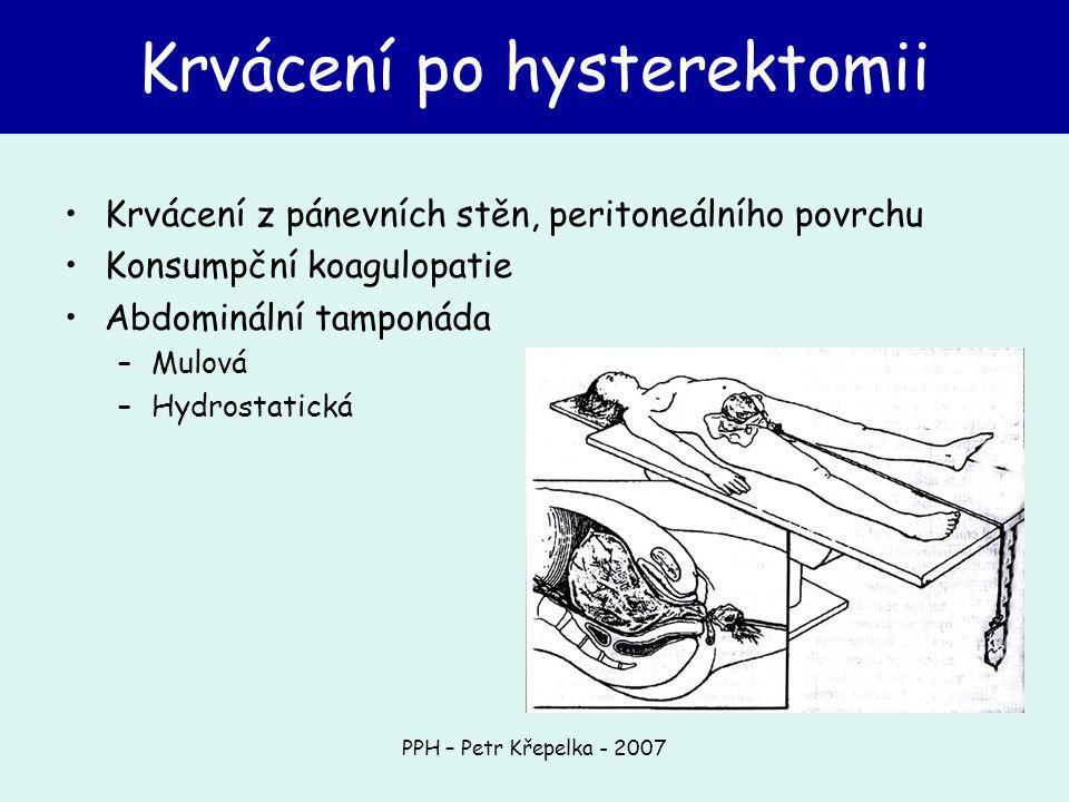 PPH – Petr Křepelka - 2007 Krvácení z pánevních stěn, peritoneálního povrchu Konsumpční koagulopatie Abdominální tamponáda –Mulová –Hydrostatická Krvácení po hysterektomii