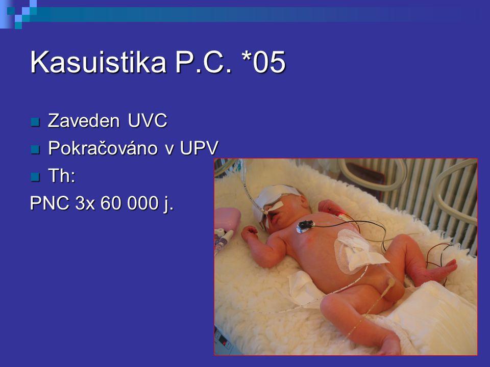 Kasuistika P.C. *05 Zaveden UVC Zaveden UVC Pokračováno v UPV Pokračováno v UPV Th: Th: PNC 3x 60 000 j.