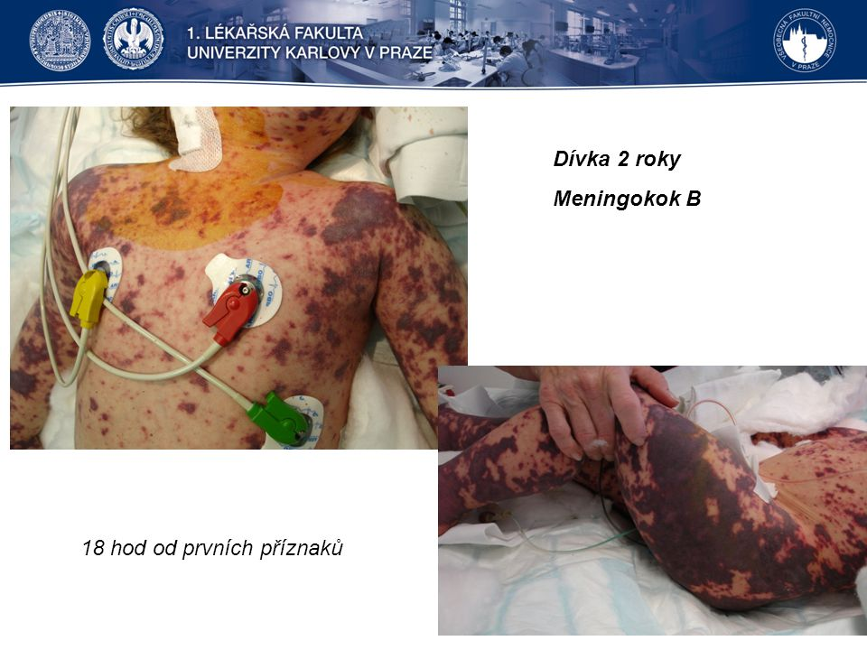 Dívka 2 roky Meningokok B 18 hod od prvních příznaků