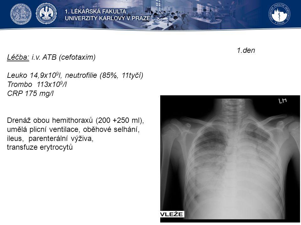 Léčba: i.v. ATB (cefotaxim) Leuko 14,9x10 9 l, neutrofilie (85%, 11tyčí) Trombo 113x10 9 /l CRP 175 mg/l Drenáž obou hemithoraxů (200 +250 ml), umělá
