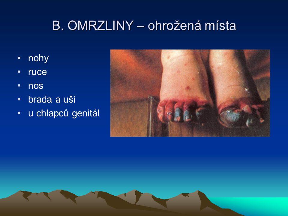 B. OMRZLINY – ohrožená místa nohy ruce nos brada a uši u chlapců genitál