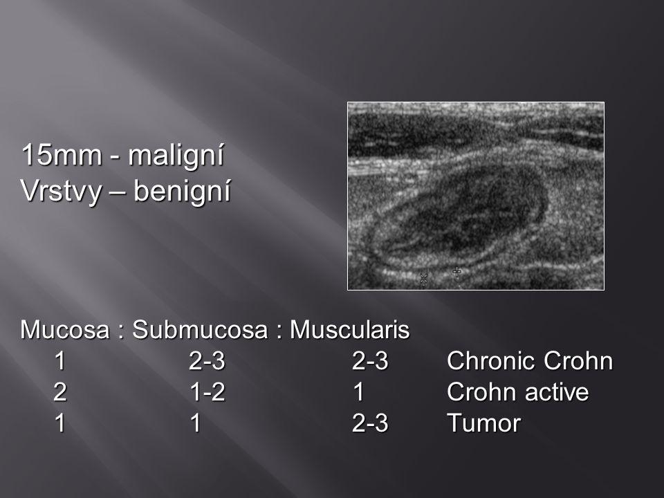 Zobrazovací metody  US  CT (rozlišení infiltrátu x abscesu a event.drenáž)  Prostý snímek (perforace, paralyt.ileus)