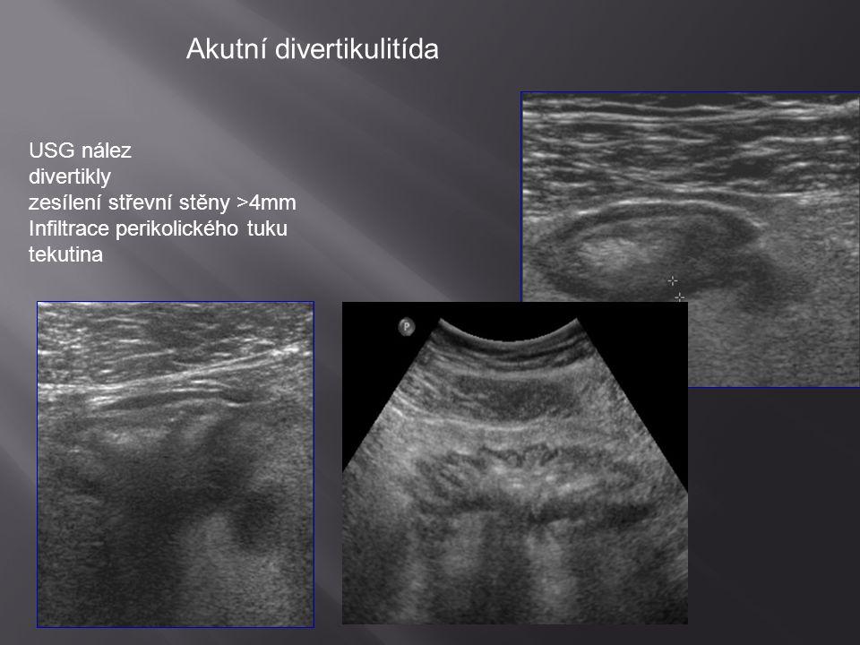 USG nález divertikly zesílení střevní stěny >4mm Infiltrace perikolického tuku tekutina Akutní divertikulitída