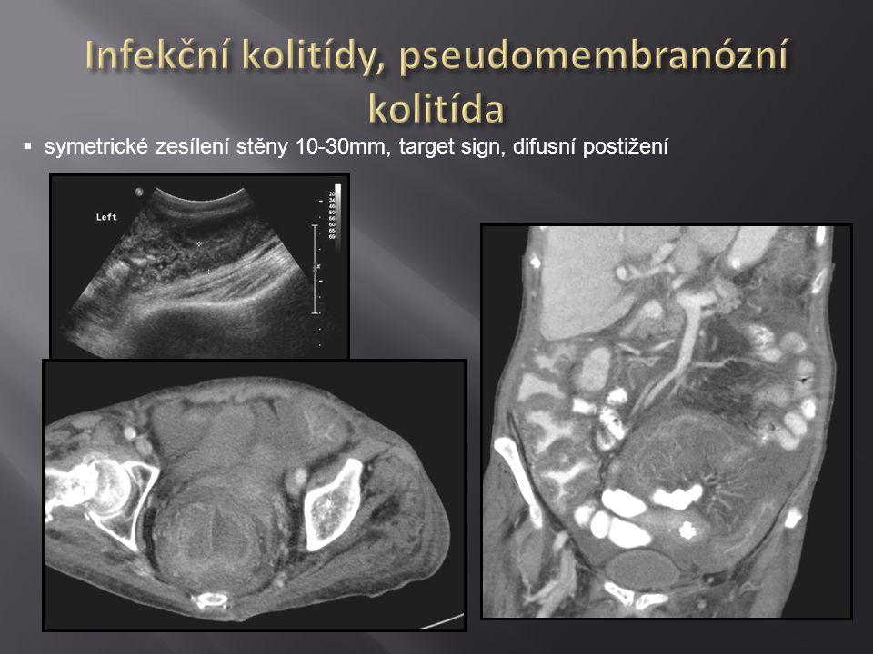  nativní sken ( pneumatóza, hemoragie), lokalizace, příčina.