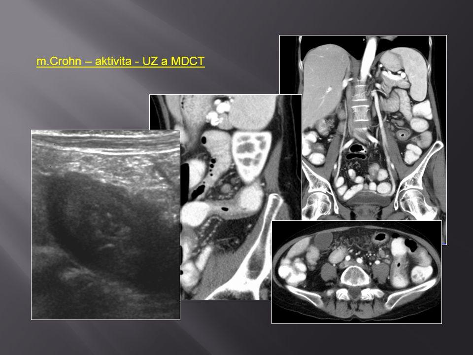 m.Crohn – aktivita - UZ a MDCT