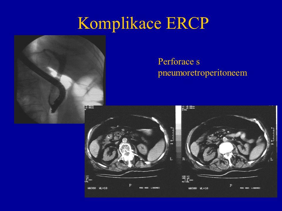 Vyšetření u pacientů s operací žaludku Stenoza v junkci hepatiků a ve střední třetině choledochu MIP rekonstrukce u pac.po BII Choledochoduodenoanastomoza MIP rekonstrukce