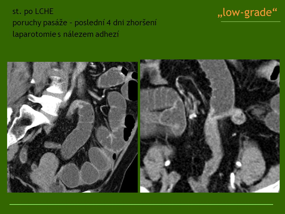 """""""low-grade"""" st. po LCHE poruchy pasáže – poslední 4 dni zhoršení laparotomie s nálezem adhezí"""