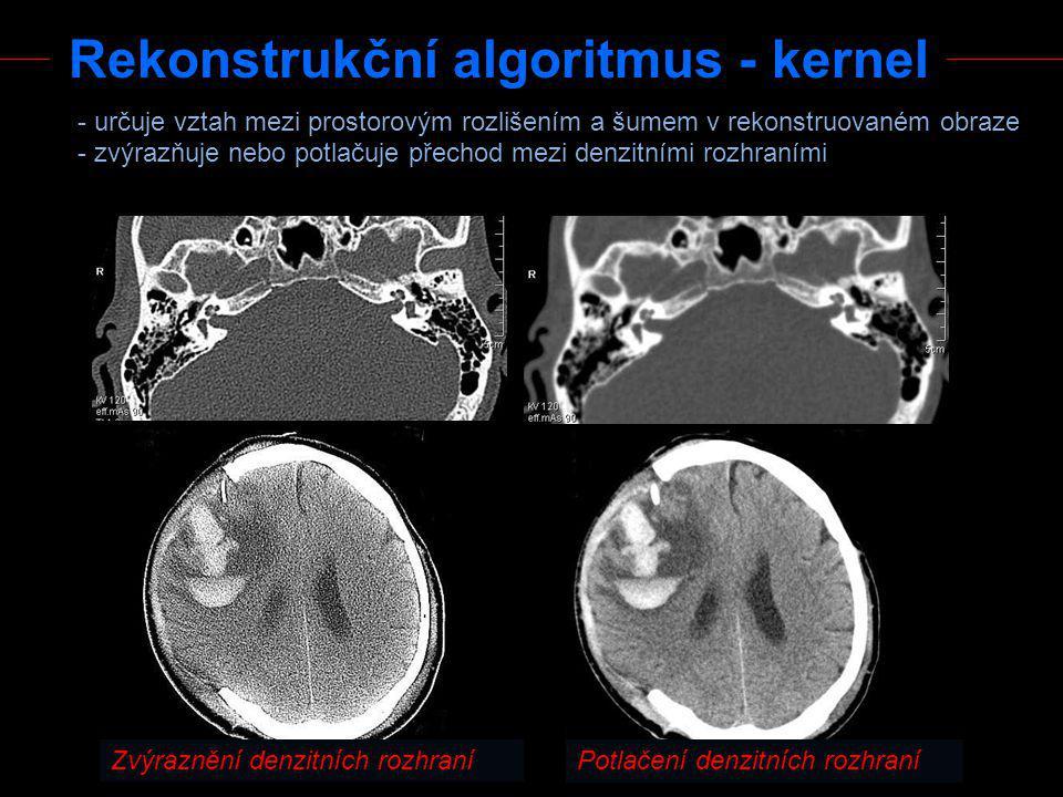 Rekonstrukční algoritmus - kernel - určuje vztah mezi prostorovým rozlišením a šumem v rekonstruovaném obraze - zvýrazňuje nebo potlačuje přechod mezi