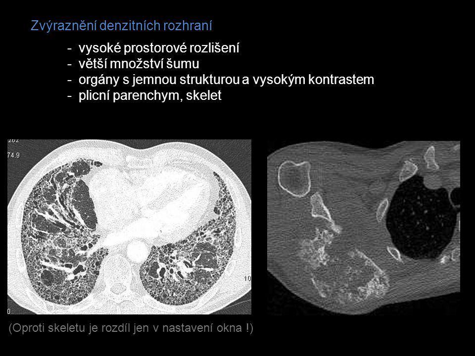 Zvýraznění denzitních rozhraní - vysoké prostorové rozlišení - větší množství šumu - orgány s jemnou strukturou a vysokým kontrastem - plicní parenchy