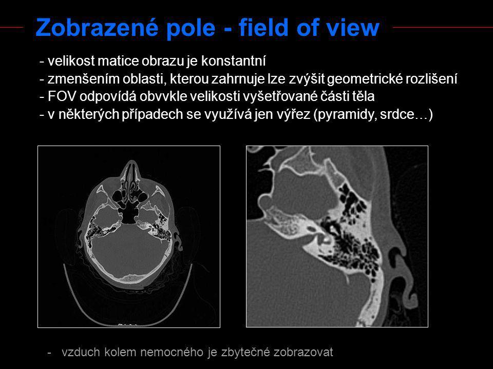 Zobrazené pole - field of view - velikost matice obrazu je konstantní - zmenšením oblasti, kterou zahrnuje lze zvýšit geometrické rozlišení - FOV odpo