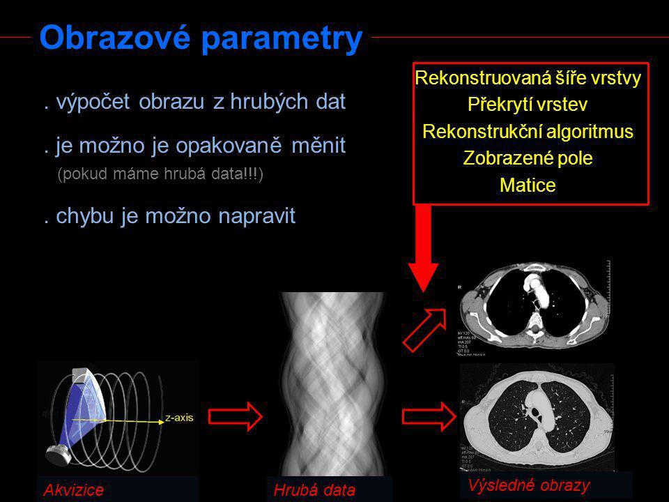 Střední potlačení denzitních rozhraní - kompromis mezi geometrickým rozlišením a mírou šumu - parenchymové orgány, měkké tkáně, cévy