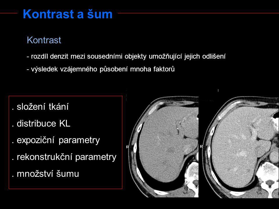 Kontrast a šum - rozdíl denzit mezi sousedními objekty umožňující jejich odlišení - výsledek vzájemného působení mnoha faktorů Kontrast. složení tkání