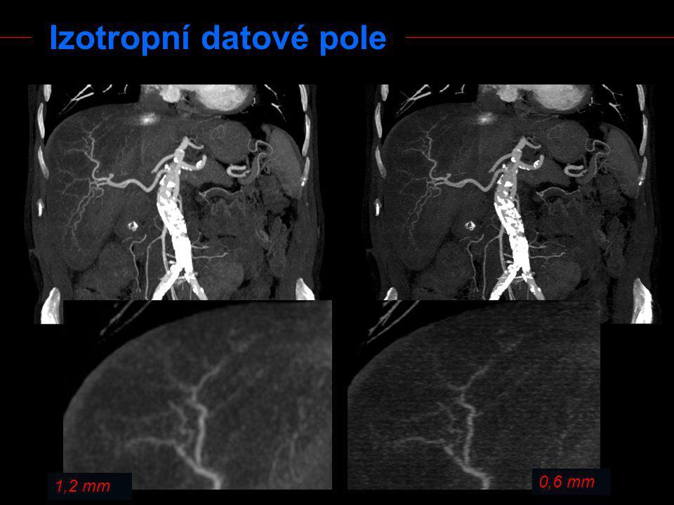 Zvýraznění denzitních rozhraní - vysoké prostorové rozlišení - větší množství šumu - orgány s jemnou strukturou a vysokým kontrastem - plicní parenchym, skelet (Oproti skeletu je rozdíl jen v nastavení okna !)