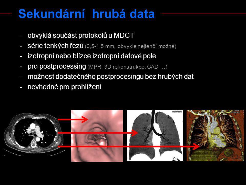 Sekundární hrubá data - obvyklá součást protokolů u MDCT - série tenkých řezů (0,5-1,5 mm, obvykle nejtenčí možné) - izotropní nebo blízce izotropní d