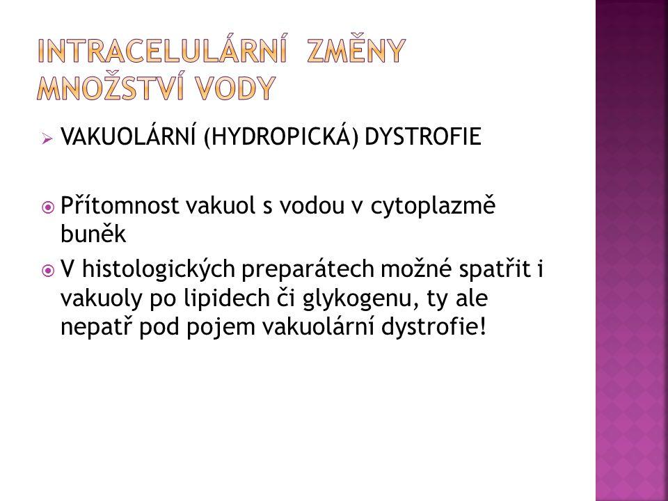  VAKUOLÁRNÍ (HYDROPICKÁ) DYSTROFIE  Přítomnost vakuol s vodou v cytoplazmě buněk  V histologických preparátech možné spatřit i vakuoly po lipidech