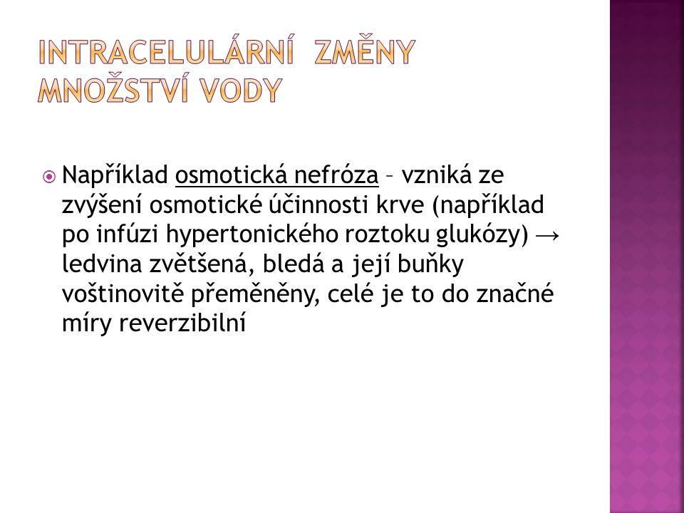  Například osmotická nefróza – vzniká ze zvýšení osmotické účinnosti krve (například po infúzi hypertonického roztoku glukózy) → ledvina zvětšená, bl